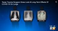 COVID-19 afectează plămânii mai rău decât fumatul. Radiografii cutremurătoare făcute publice de un medic