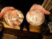 50 de ani de la primul implant mamar cu silicon. Istoria unei industrii de miliarde de dolari la nivel mondial